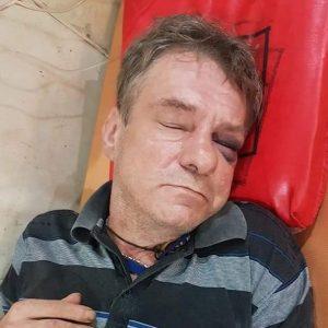 Nieprzytomny Polak w zagranicznym szpitalu. Poszukiwana rodzina!